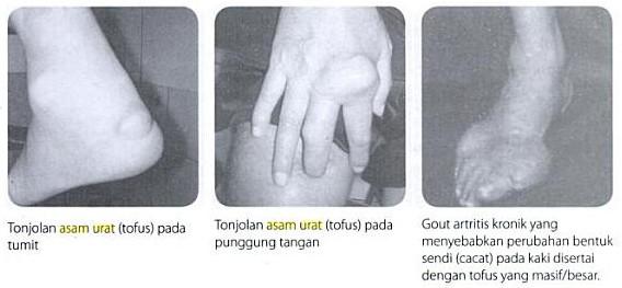 gejala gejala asam urat