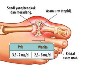 kadar asam urat normal pria dan wanita
