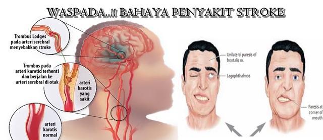 penyakit stroke dan gejalanya